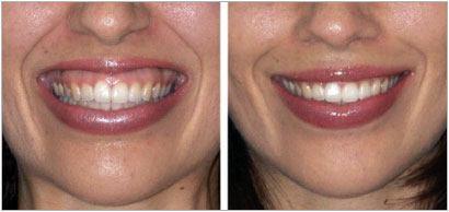 botox auckland gummy smile